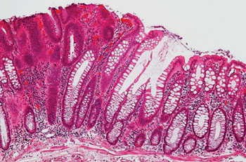 cancer de colon biopsia