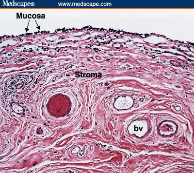define fibroepithelial papilloma hpv treat herpes