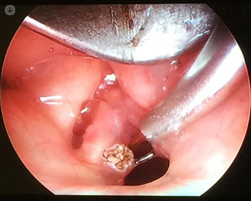 surgical treatment for laryngeal papilloma)