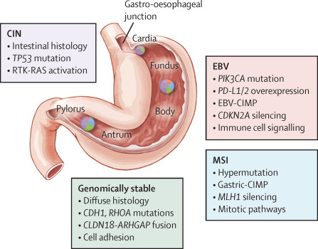 gastric cancer review)