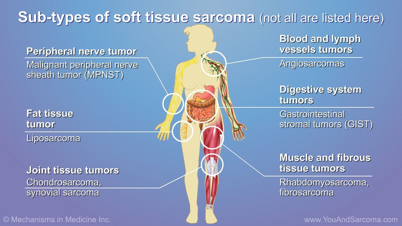 sarcoma cancer soft tissue cancerul mamar forme clinice