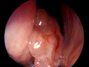 papiloma nasal benigno ovarian cancer from hpv
