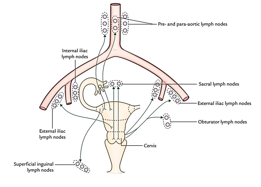 endometrial cancer lymphatic drainage