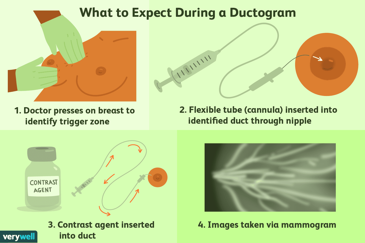 intraductal papilloma ductogram