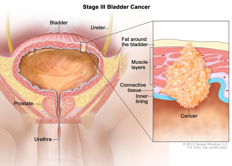 hpv cause bladder cancer)
