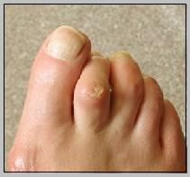 warts on foot left untreated)