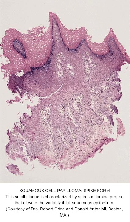 esophageal papilloma histology papilloma virus come si guarisce