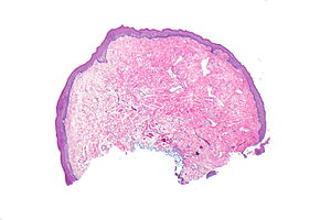 Urothelial papilloma pathology outlines