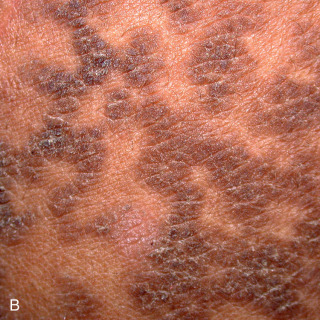 confluent and reticulated papillomatosis icd 9