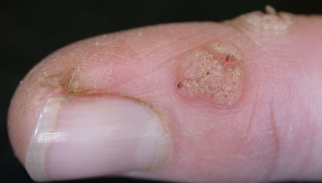 hpv warts finger