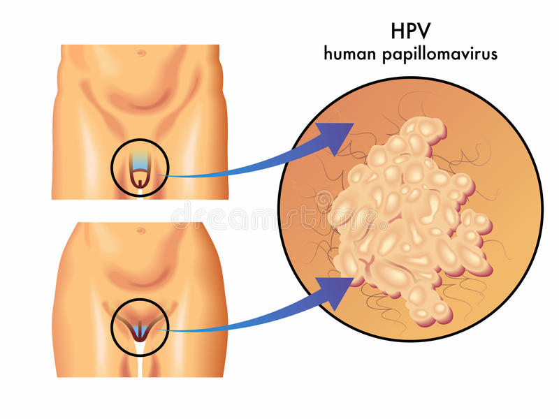 hpv for papilloma)