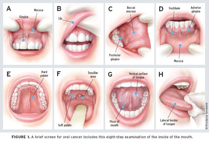 hpv mouth treatment