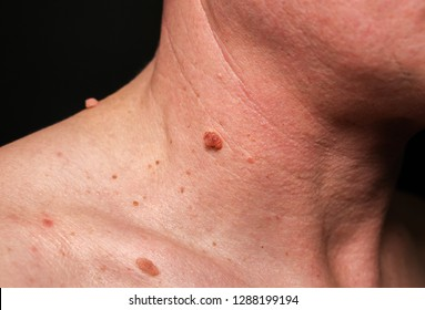 cell papilloma of skin)