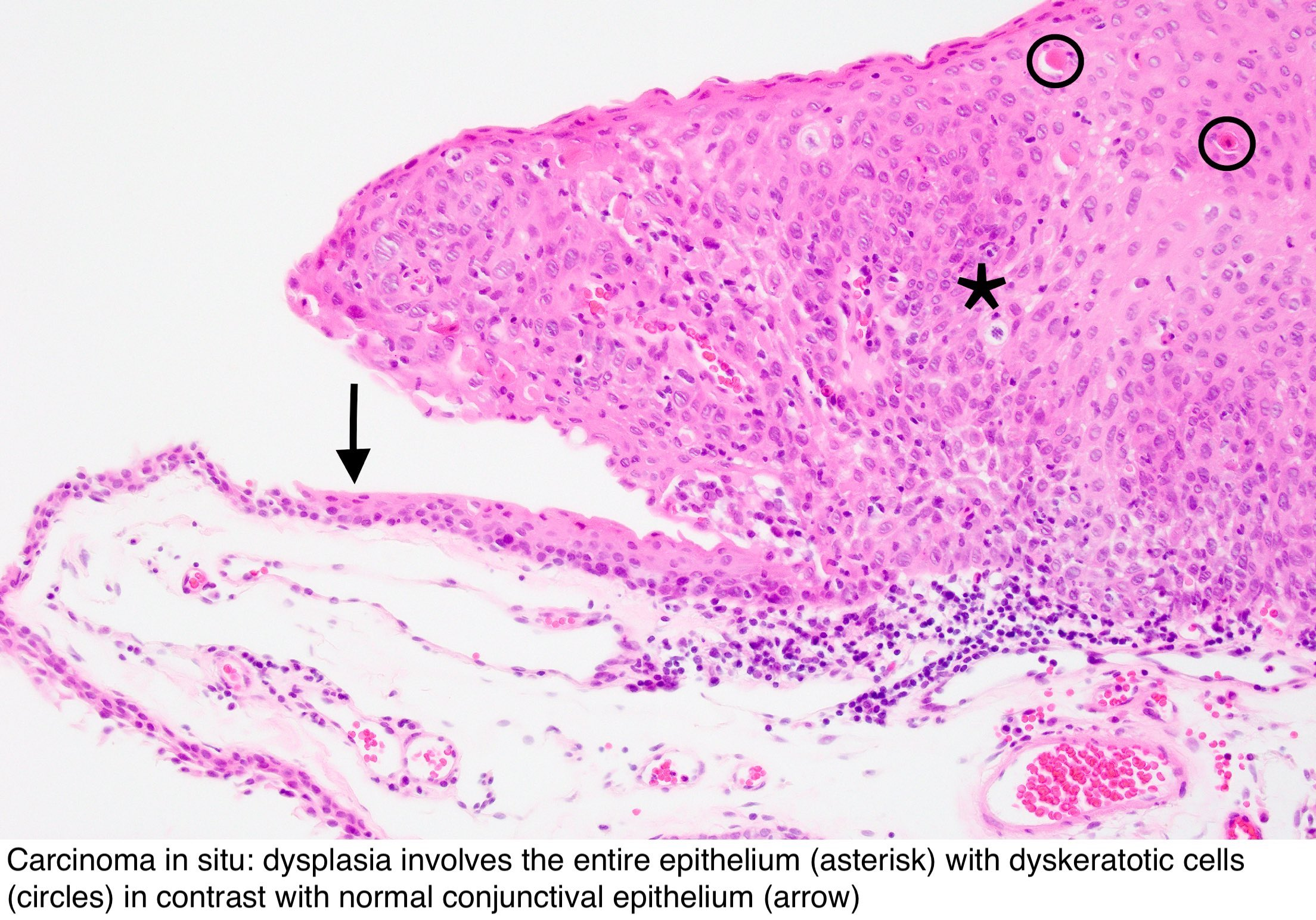 Intraductal papilloma histopathology Hpv cancer of the tonsil