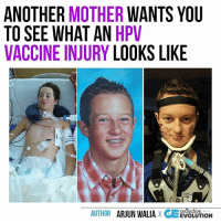 gardasil vaccine injury)