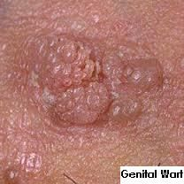 herpes is hpv