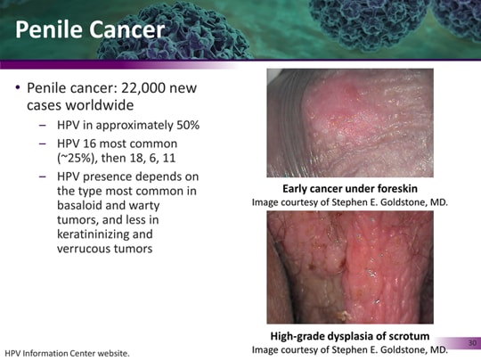 hpv 16 and 18 penile cancer)