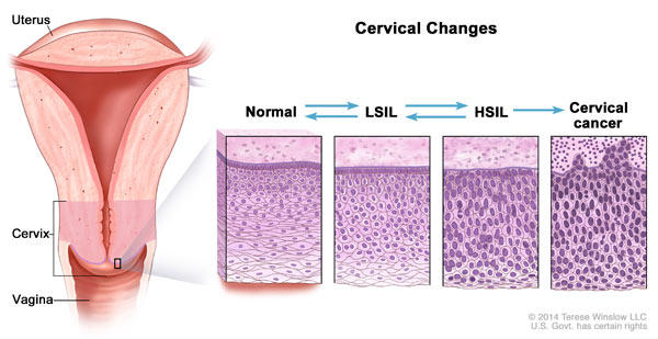 Hpv cancer cells cervix, Traducere