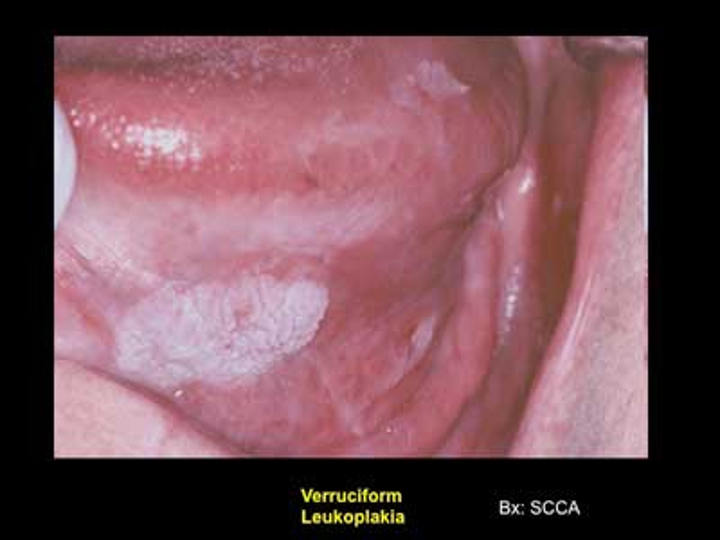 hpv causes oropharyngeal cancer