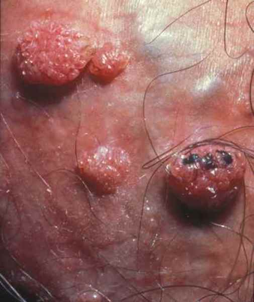 hpv homme gland