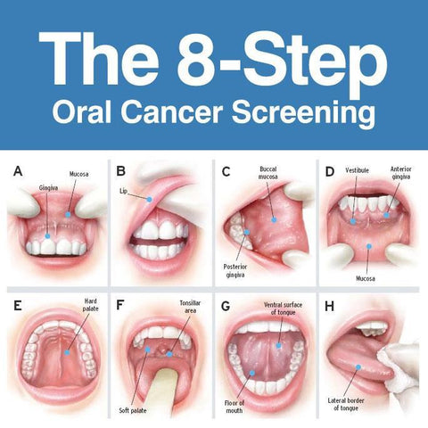 Mouth and throat cancer from hpv, Etichetă: cancer oral