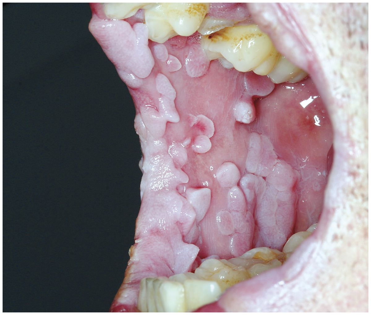 hpv mouth throat papilloma a cellule squamose