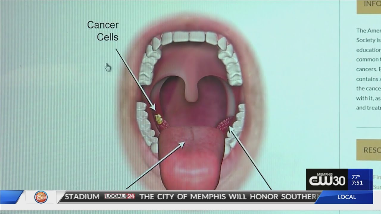 hpv neck cancer symptoms)