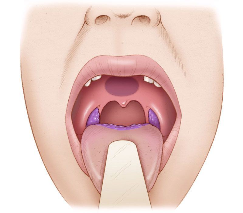 hpv oropharynx cancer symptoms