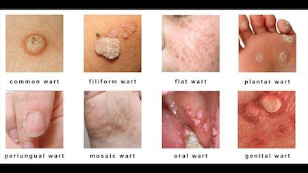 hpv wart vs pimple)