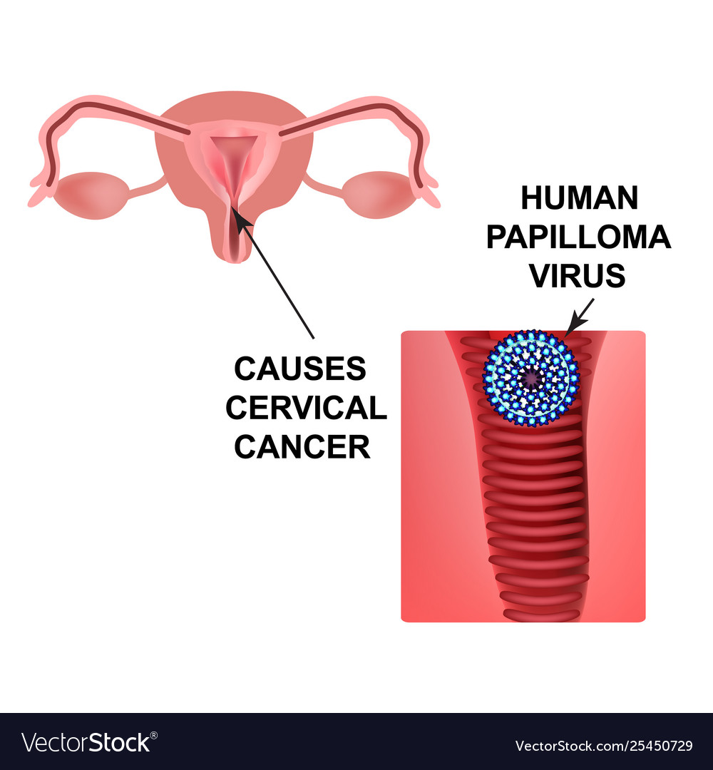 human papilloma virus linked to cancer)