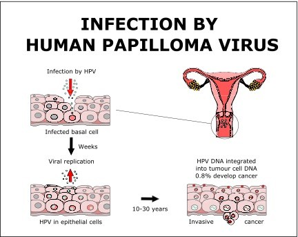 infection in papilloma)