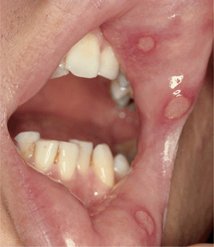 inflamed papillae icd 10)
