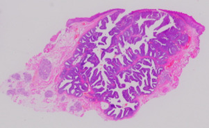 intraductal papilloma salivary gland