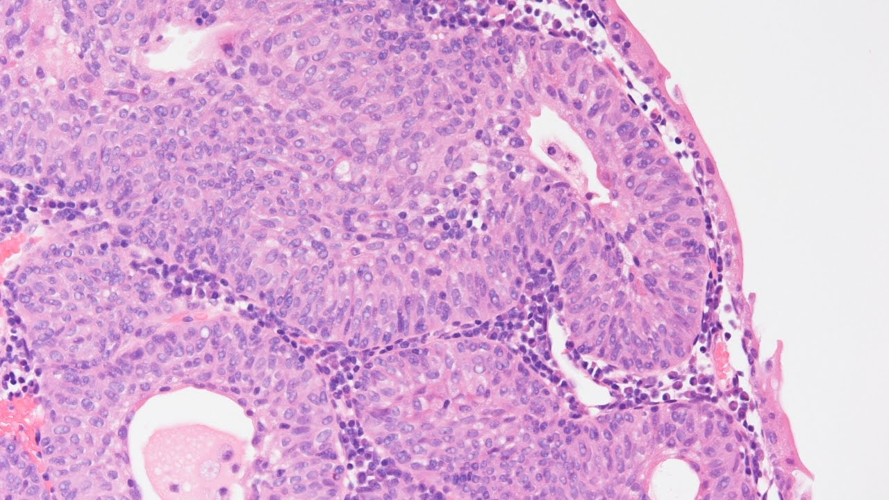 inverted papilloma histopathology