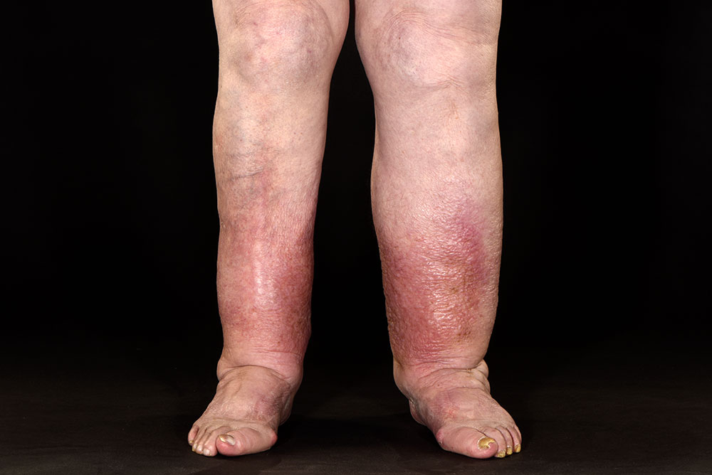 what does helminth mean wart virus cause