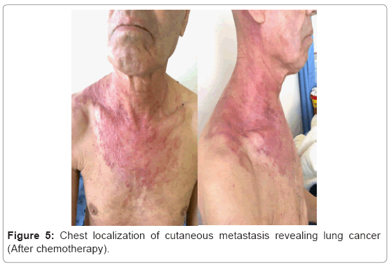 Metastatic cancer lymph node neck - parohiaorsova.ro
