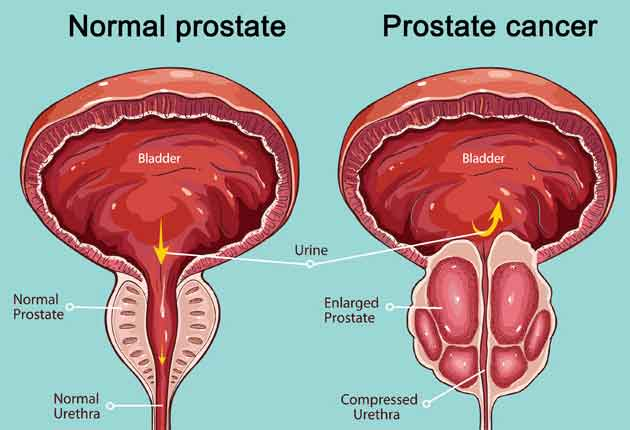 Tratament de Cancer de Prostata