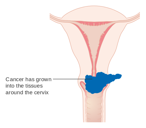 Ovarian cancer germ cell