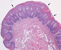 Squamous papilloma tongue pathology, Referințe bibliografice pe an