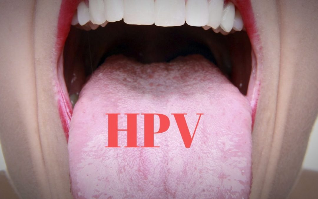 Infecţia cu virusul HPV (Human papilloma virus) Si no es papiloma que puede ser