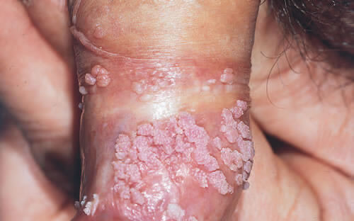 sarcoma cancer soft tissue