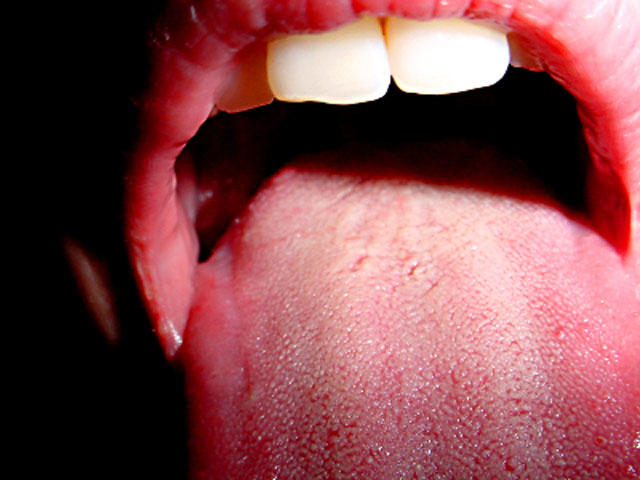 papilloma virus mouth