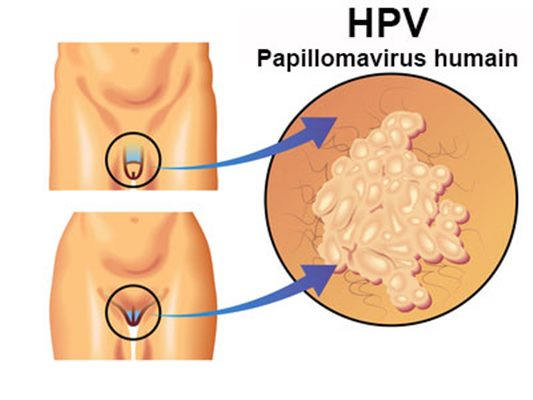 Mst papillomavirus homme traitement - Lesions associated with hpv