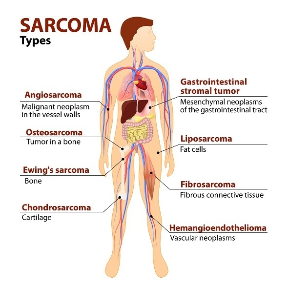 sarcoma cancer is