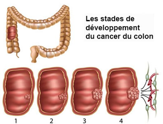 simptome cancer colon