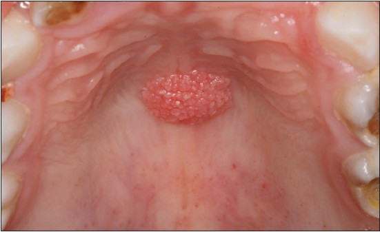 squamous papilloma prognosis)