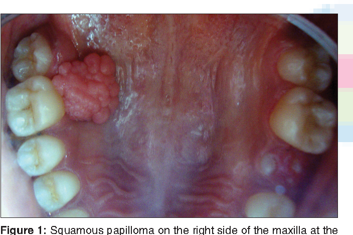 squamous papilloma removal helmintic dex