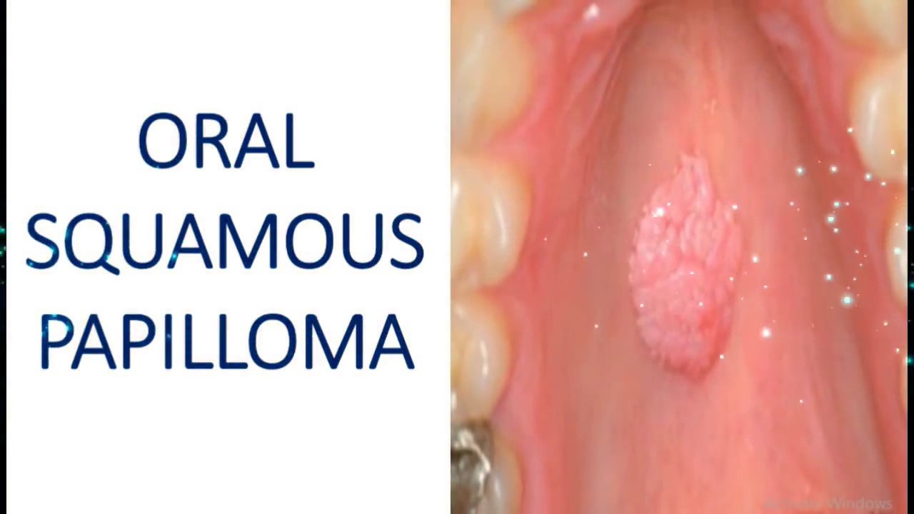 squamous papillomas definition