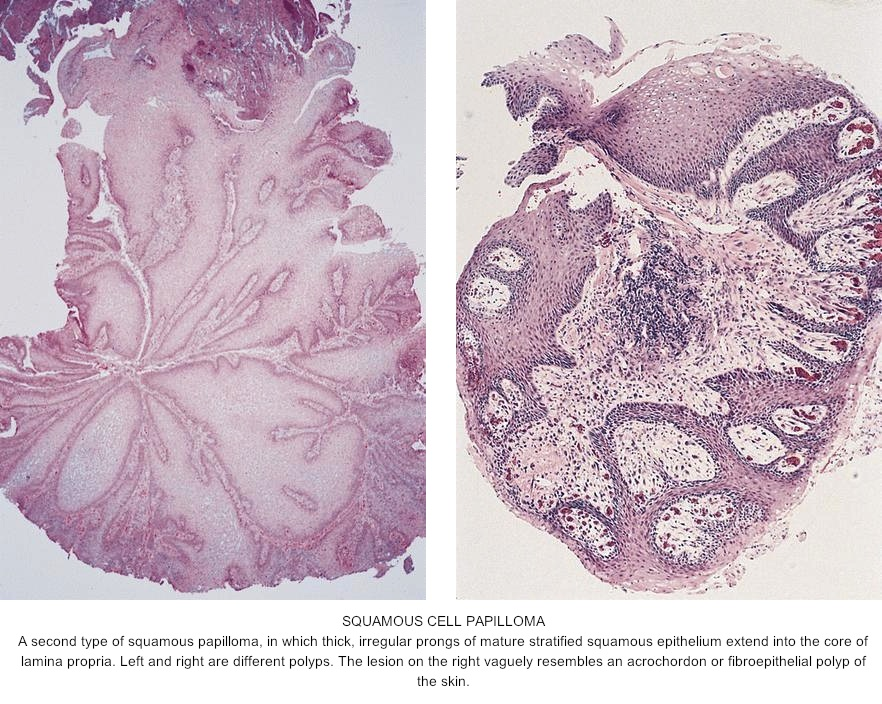Squamous papilloma of tongue pathology outlines