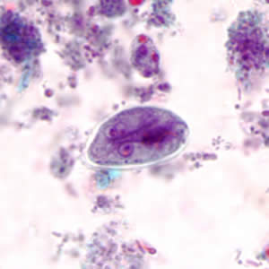 tratament giardia cdc)